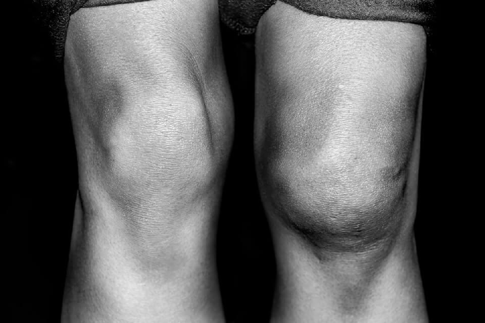 Очень болят колени хрустят thumbnail