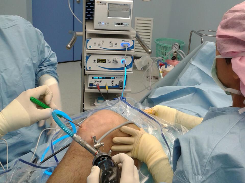 Оперативное лечение боли и хруста в колене