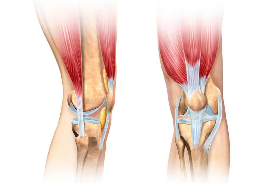 Поражение связок коленного сустава