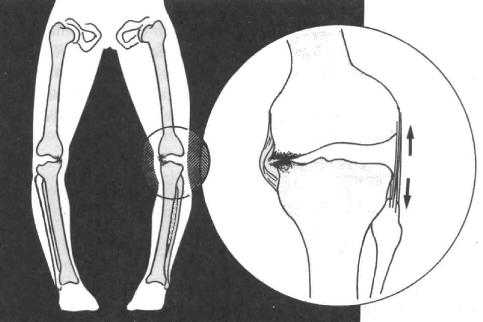 Синдром гипермобильности коленных суставов