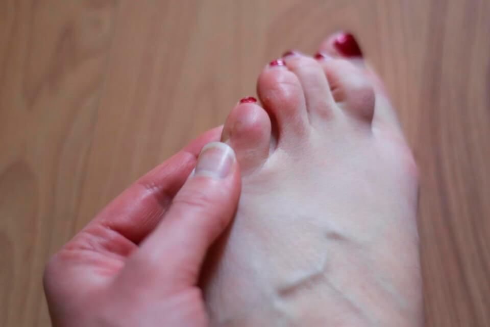 Болит косточка на правой ноге около большого пальца скорая помощь thumbnail