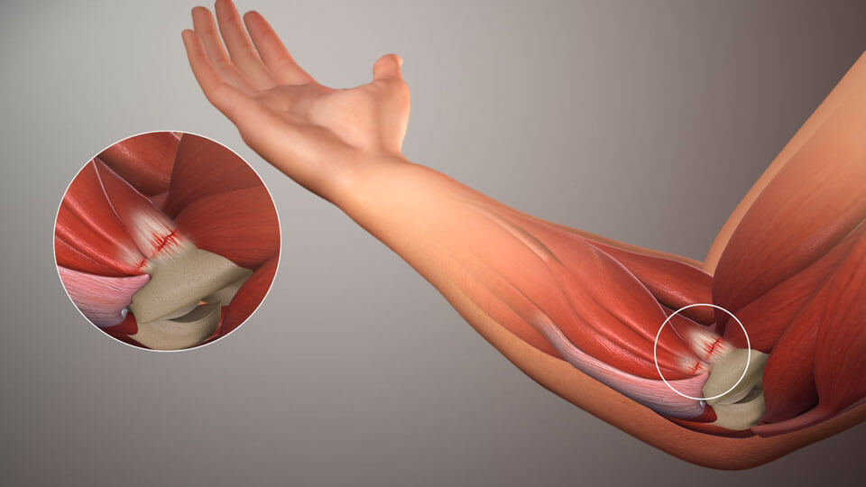 Сильно болят мышцы локтевого сустава thumbnail