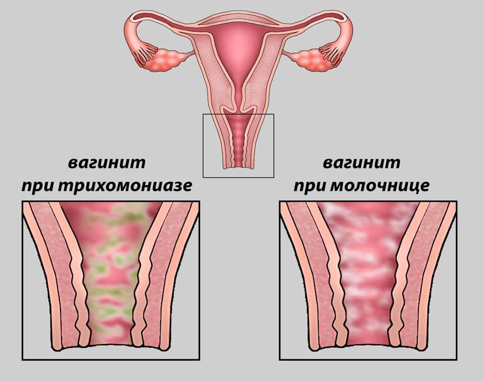 Кровь при мочеиспускании у женщин