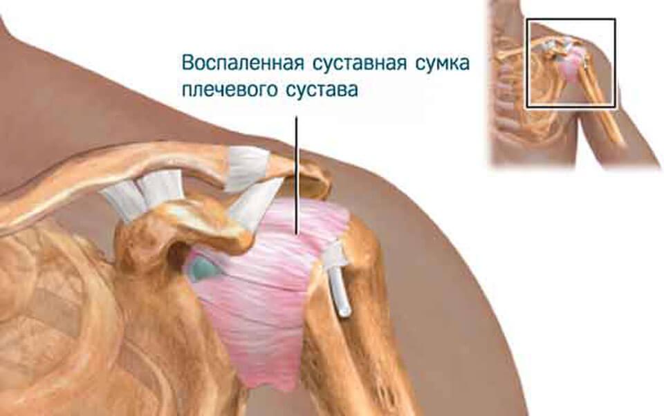 Боль в плечевом суставе правой руки