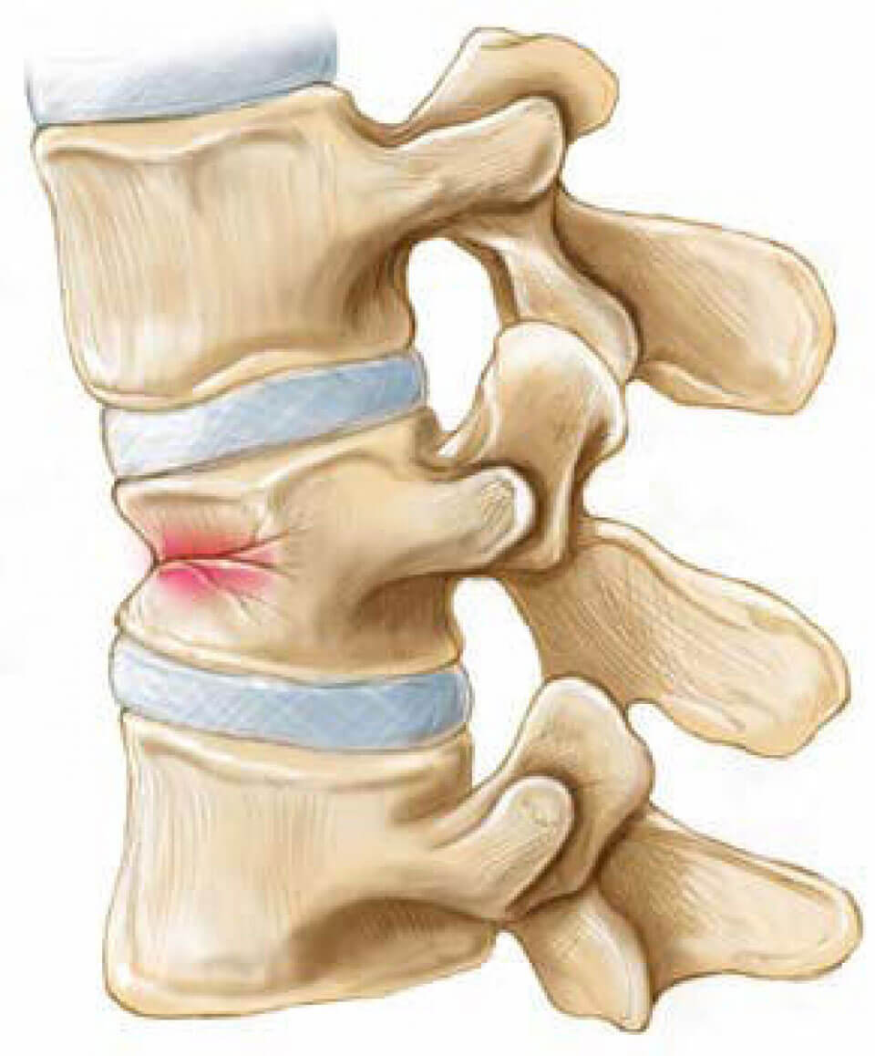 Болит сустав на руке после перелома thumbnail