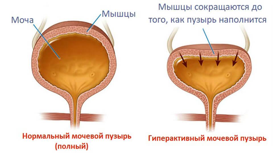Болит мочевой пузырь у женщины симптомы лечение thumbnail