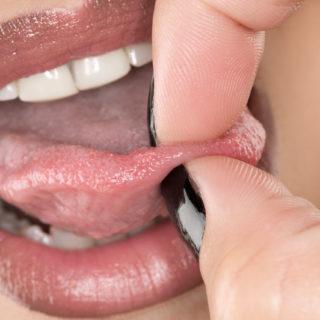 Немеет кончик языка — что это значит?