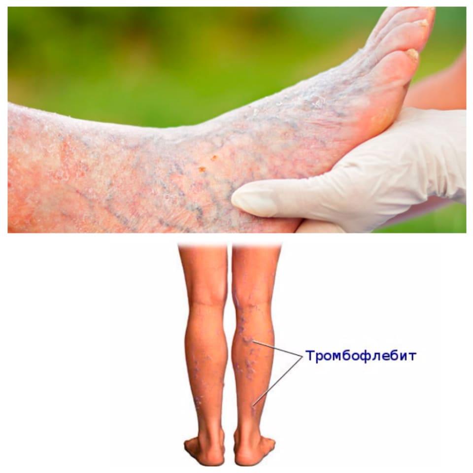 Проявление тромбофлебита как осложнения при основных заболеваниях