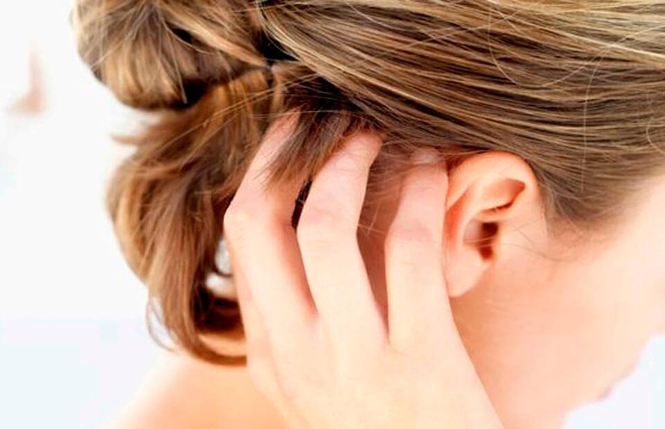 Боль кожного покрова головы