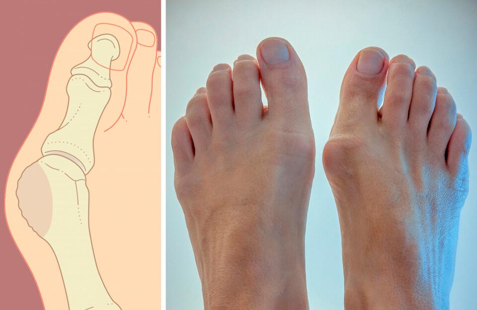 Болит косточка на большом пальце ноги