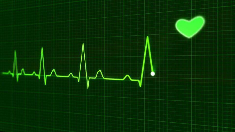 Sinusovaya aritmiya - Aritmia sinus jantung sedang pada anak dari 4 hingga 8 tahun, gejala dan pengobatan