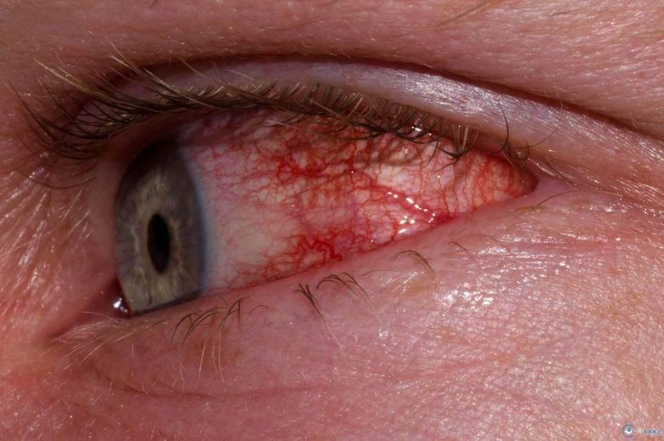 Аллергический конъюнктивит: что это, причины, симптомы, лечение