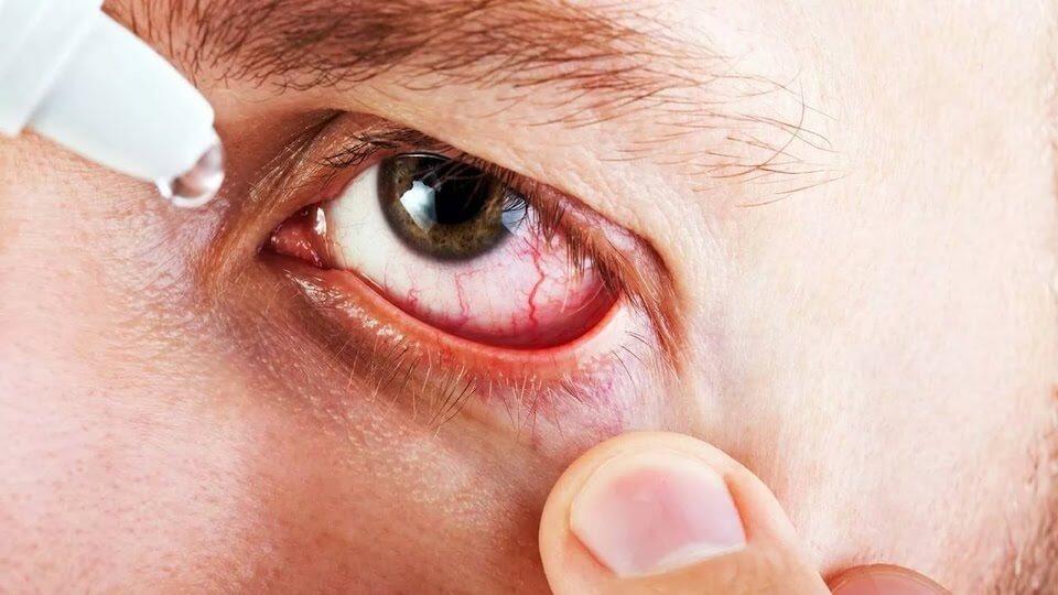 Что такое аллергический конъюнктивит