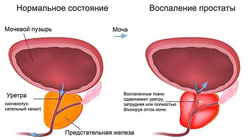 Почему болит в паху у мужчины справа и слева