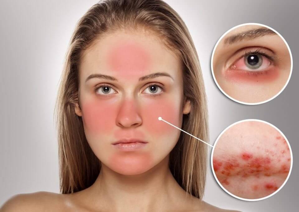 Красные пятна на лице шелушатся и чешутся