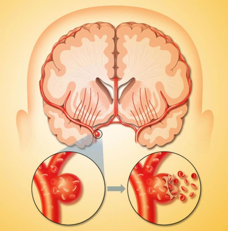 Инсульт - симптомы и первые признаки приступа