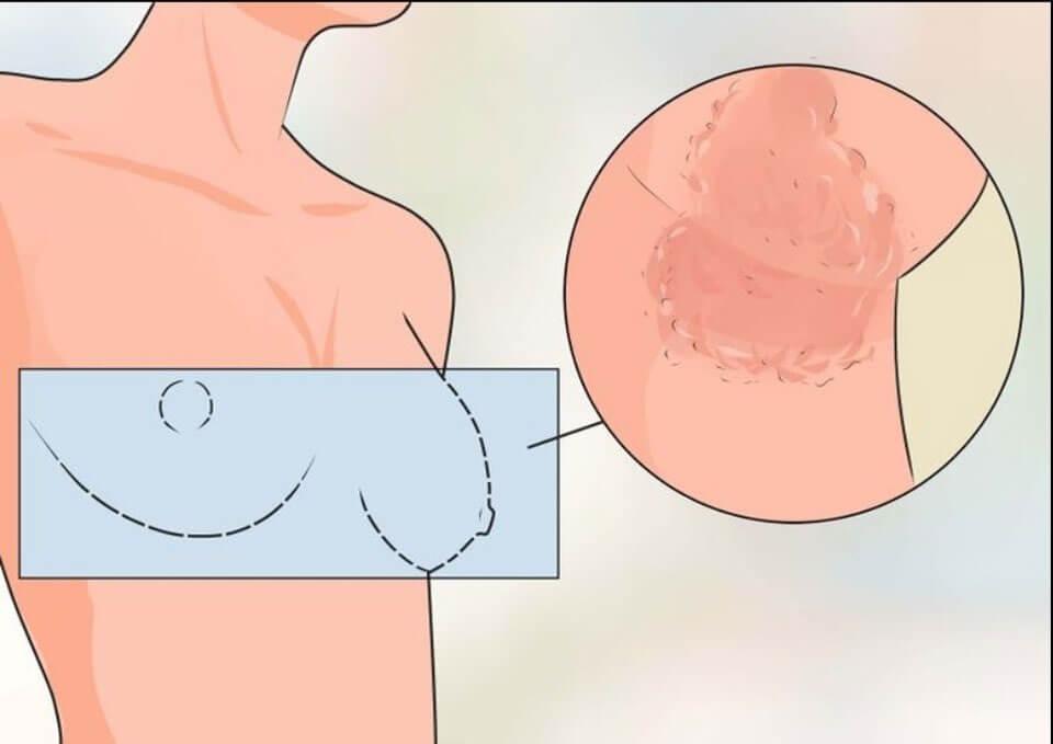 Зуд под грудными железами у женщин