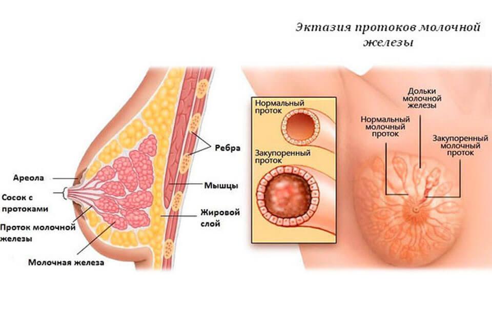 Почему чешется под грудными железами 26