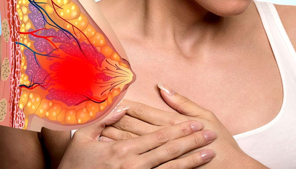 Почему чешется под грудными железами 27