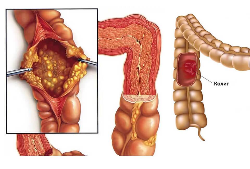 Болит желудок вверху посередине