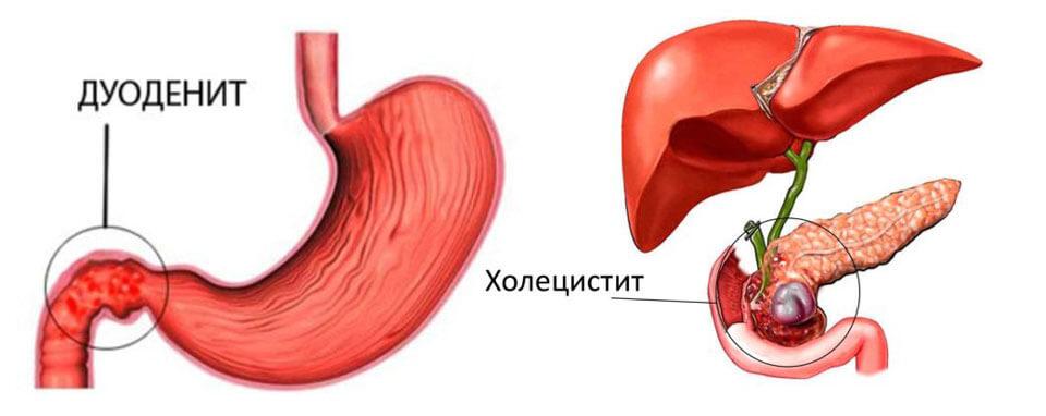 Боль в верху живота по центру - Острая боль в верхней части живота