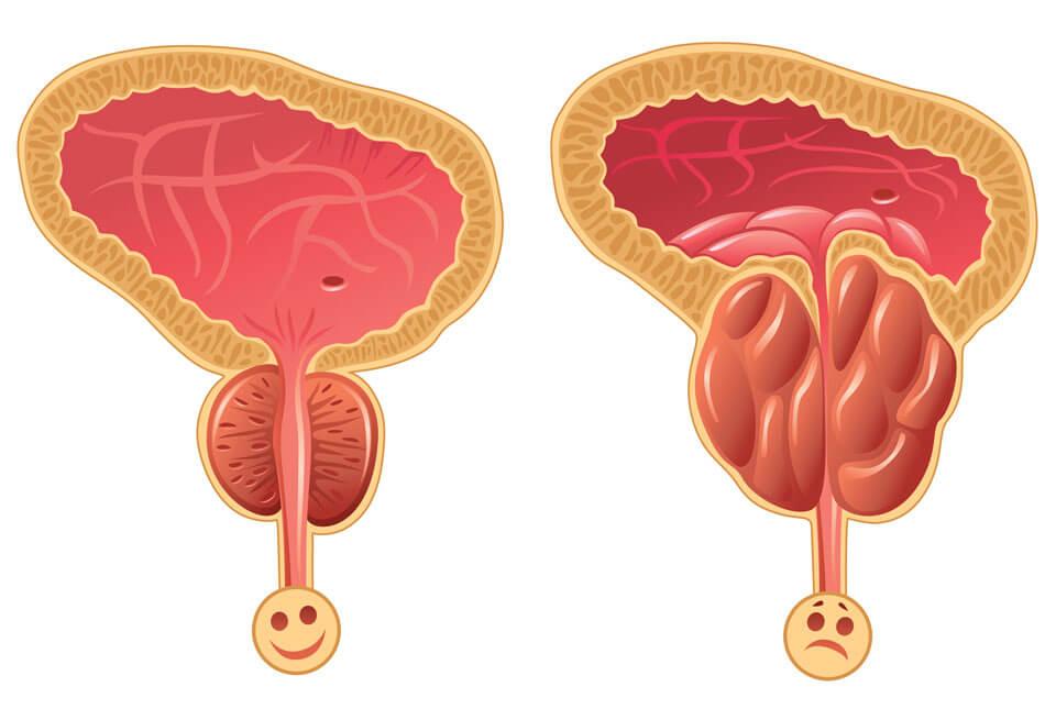 Аденома предстательной железы простатита помогает ли таваник от простатита