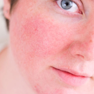 Раздражение на коже лица у женщин