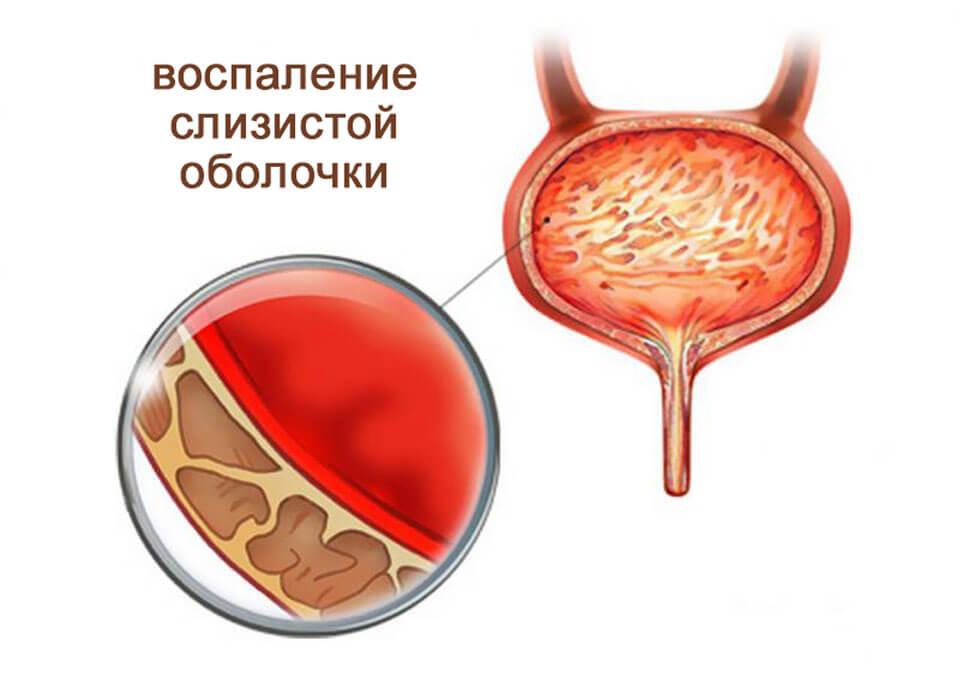 Болит мочевой пузырь у женщины