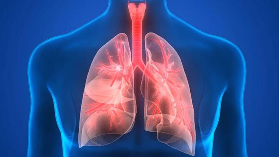 пневмония здоровые легкие картинка что
